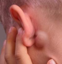 почему воспаляются лимфоузлы за ушами
