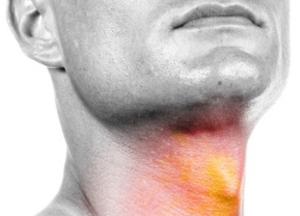 все о болезнях горла и гортани