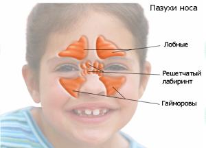 Симптомы и лечение этмоидита