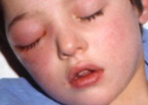 Признаки острого этмоидита