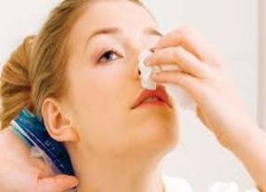 Причины частых носовых кровотечений,