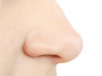 киста в пазухе носа