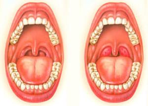 ангина симптомы и лечение