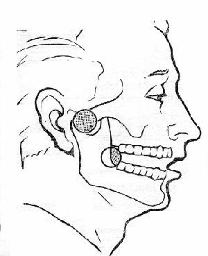 Пульпа зуба что это такое лечение