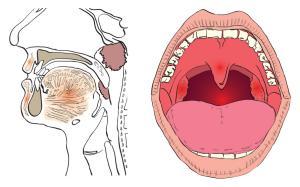Cимптомы рака горла и гортани