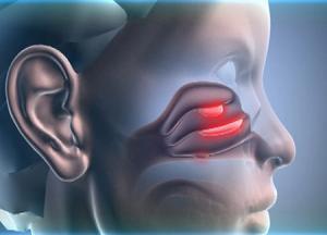 Полипы в носу фото и лечение