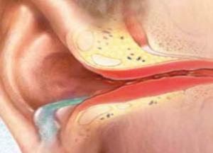 болезни уха человека фото