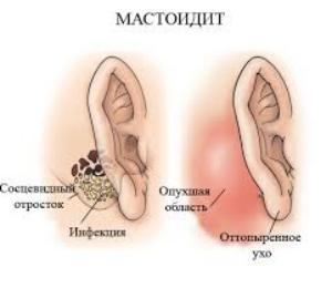Отогенные осложнения уха