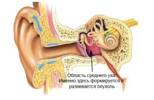атипичные формы мастоидита