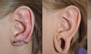 Последствия неправильного прокола хряща уха