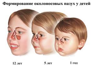 хронический синусит у ребенка симптомы