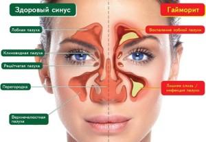 хронический синусит симптомы у взрослых