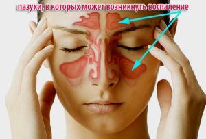 хронический синусит симптомы и лечение
