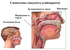 Хронический синусит симптомы