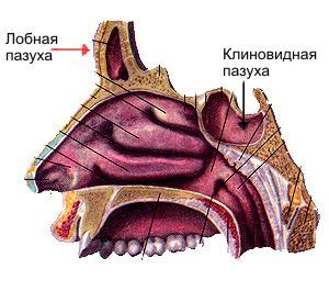 признаки сфеноидита