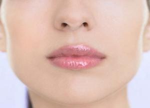 почему возникают кровяные корки и сухость в носу
