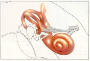стапедопластика при отосклерозе