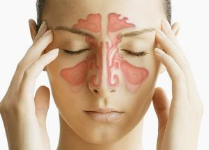 Лечение гайморита и насморка