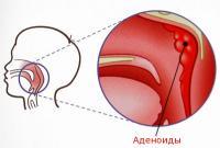 увеличенные аденоиды у ребенка лечение