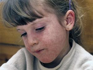 корь у детей симптомы