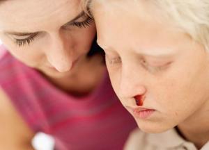 причины носовых кровотечений у детей разного возраста