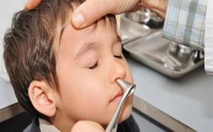полипы в пазухах носа симптомы