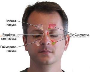 воспаление слизистой носа фото