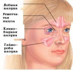 воспаление пазух носа чем лечить