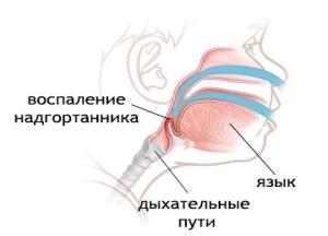 эпиглоттит фото