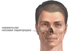 искривление носовой перегородки симптомы