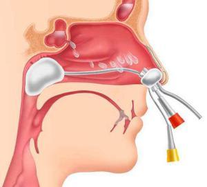 острый катаральный риносинусит