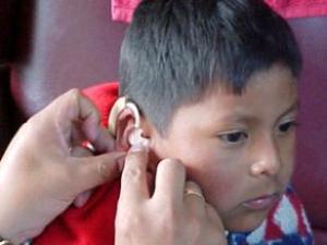 ухо плохо слышит но не болит причины