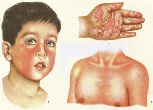 инфекционный мононуклеоз фото