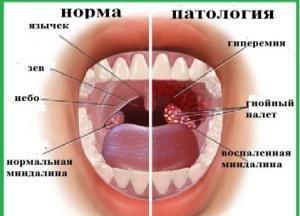 абсцесс миндалины