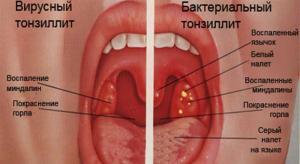 хронический тонзиллит удаление миндалин отзывы
