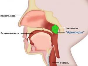 удаление аденоидов у детей лазером отзывы
