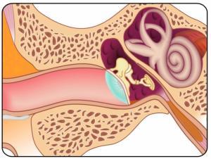 болезнь меньера симптомы и лечение народными средствами