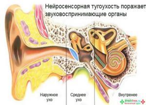лечение нейросенсорной тугоухости народными средствами