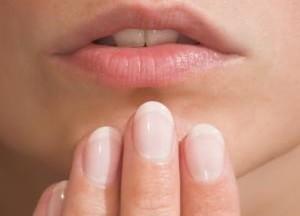 лечение кандидоза полости рта у детей