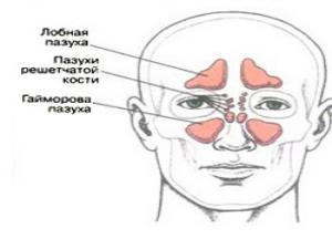 насморк с кровью у взрослого причины