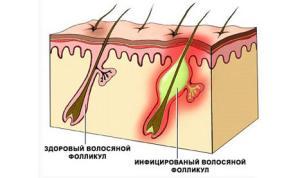 лечение подрывающего фолликулита