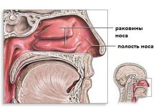 ринорея лечение