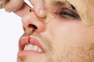 перелом носа симптомы