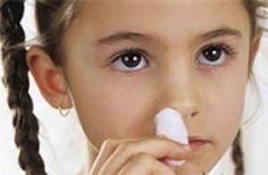 перелом носа у ребенка симптомы фото