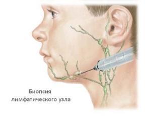 лимфаденит у детей симптомы и лечение