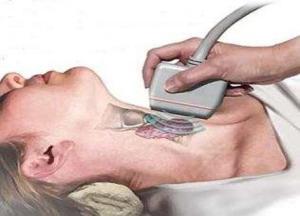 зоб щитовидной железы что это такое фото