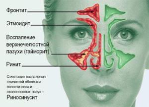 народное лечение хронического насморка