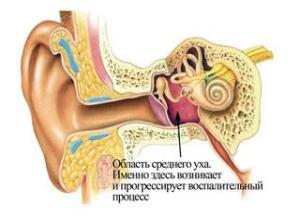 лечение уха народными средствами