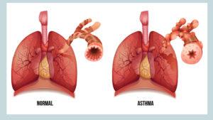 астма как жить