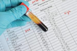 как сдать биохимический анализ крови
